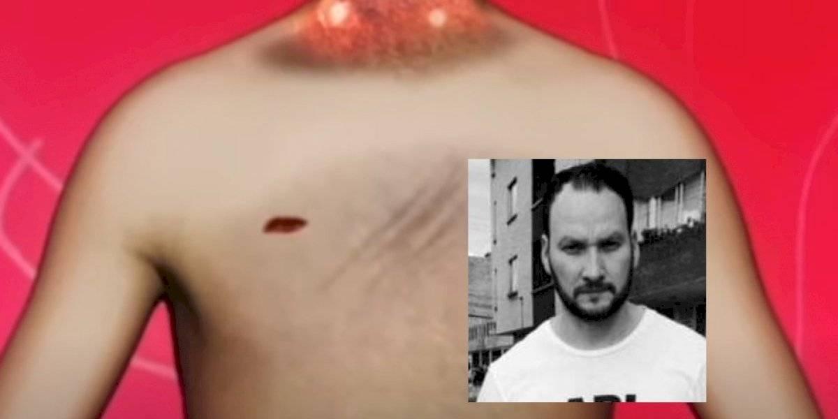 La extraña herida que tenía Javier Ordóñez en el pecho