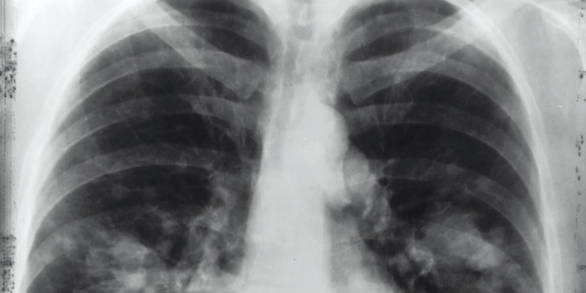 Covid-19 provocou 436 mil casos de síndrome respiratória aguda grave no Brasil