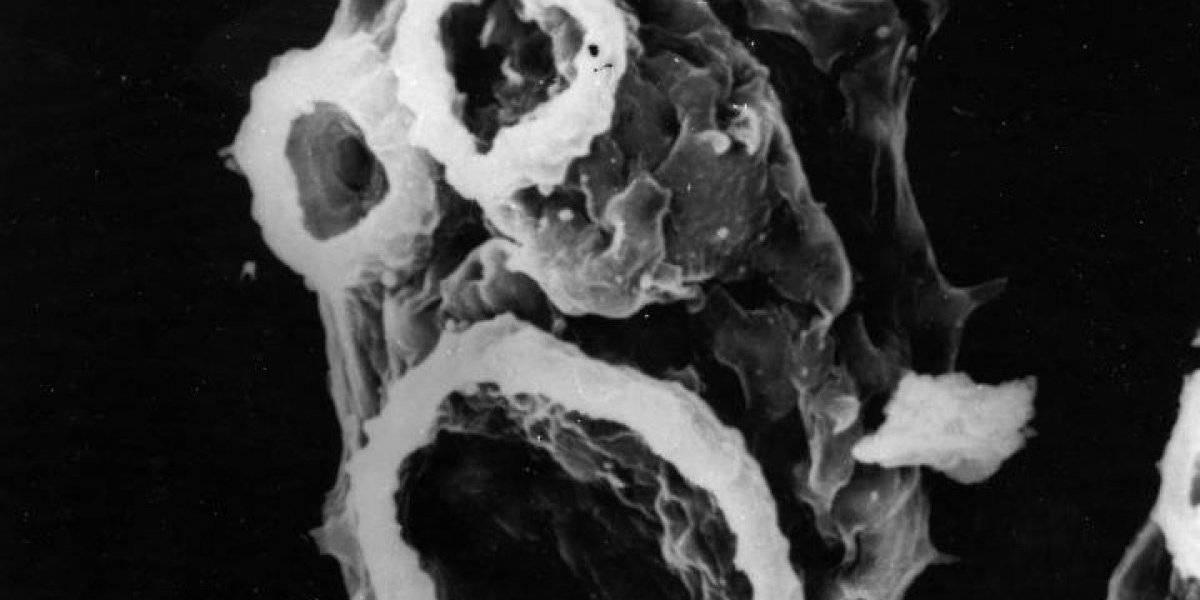 """Preocupante: ameba """"comecerebros"""" puede matar en cinco días"""