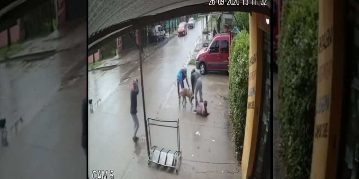 Fuertes imágenes: pitbull ataca brutalmente a niña de 7 años y la deja grave en el hospital