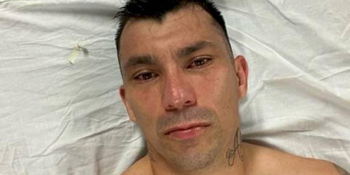 """""""Más triste que la chucha"""": la publicación de Gary Medel tras salir lesionado en partido del Bologna"""