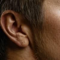 Pérdida de audición sería otro de los síntomas de Covid-19 ¿Cómo lo descubrieron?