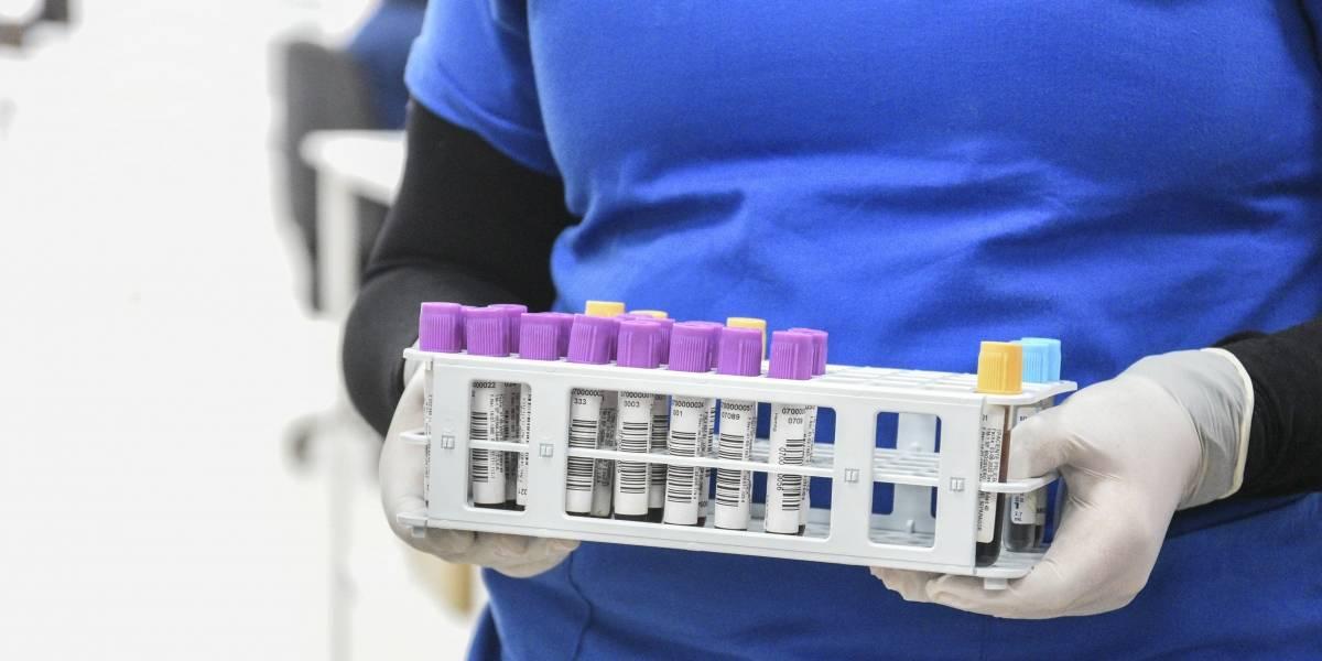 Coronavirus.- Chile informa de casi 1.700 nuevos casos de coronavirus y supera los 488.000 en total