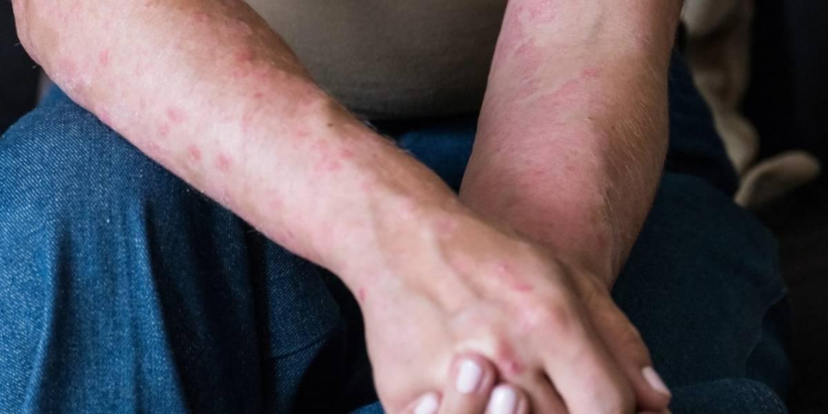 COVID-19: Descubren que el coronavirus también deja secuelas en la piel