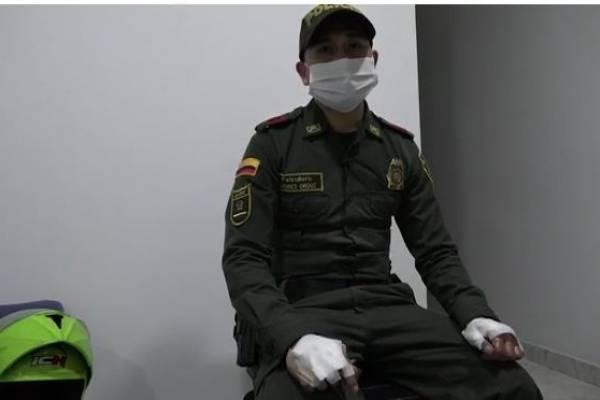 Patrullero Orduz, el policía que se quemó brazos y pecho por salvar a niño en medio de riña familiar