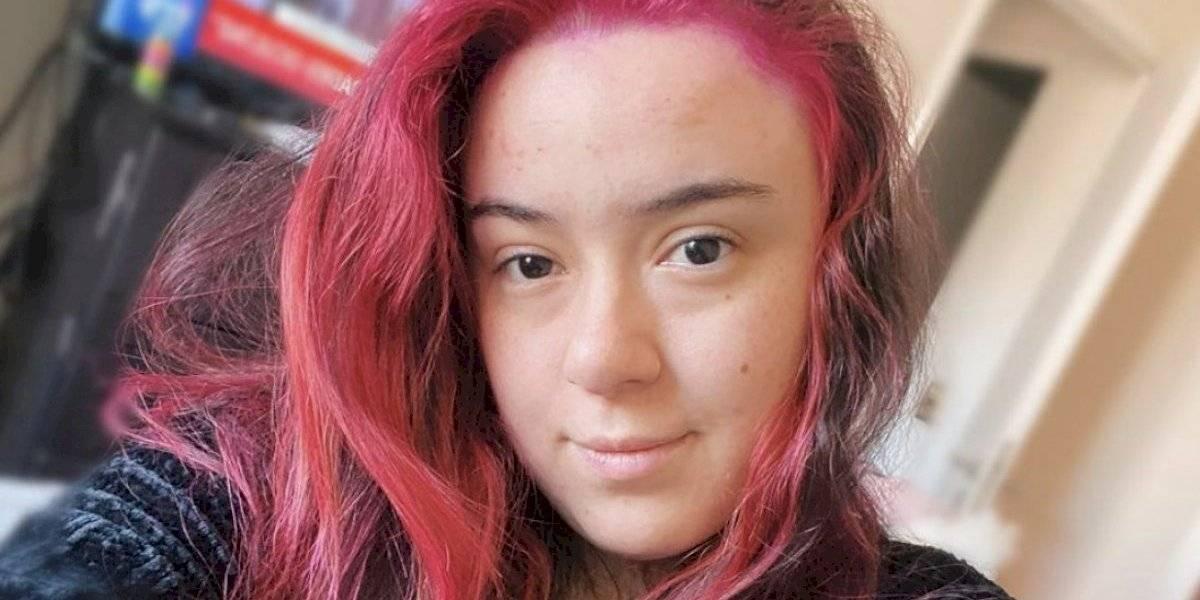 Christell Rodríguez impacta: se sometió a bichectomía y muestra fotos del antes y después