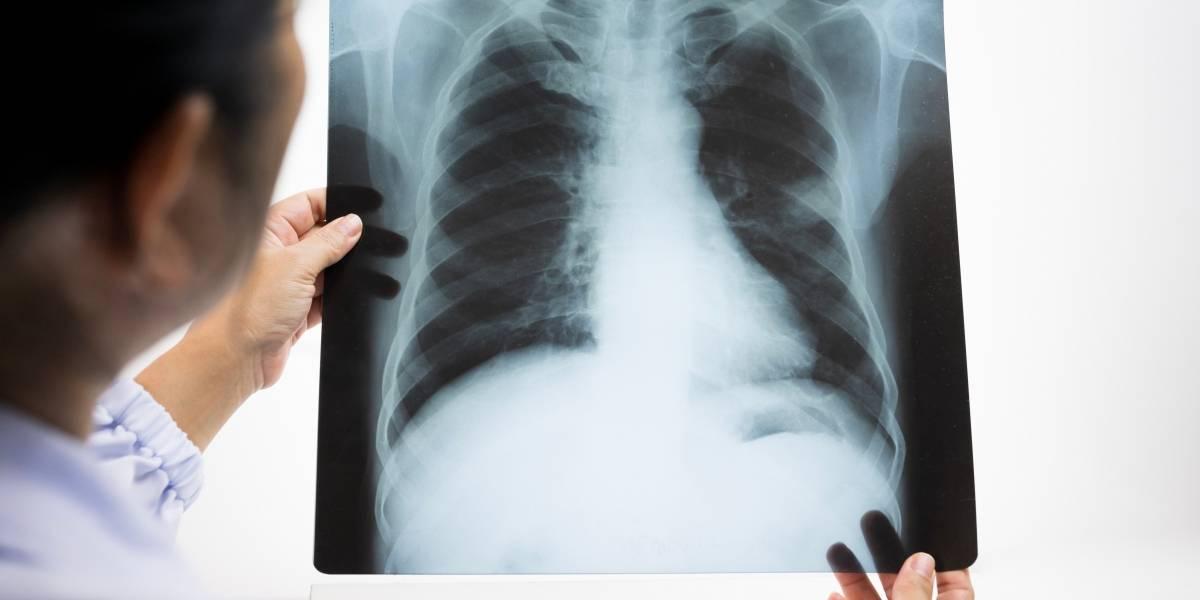 Cáncer de pulmón: una enfermedad que no solo ataca a los fumadores