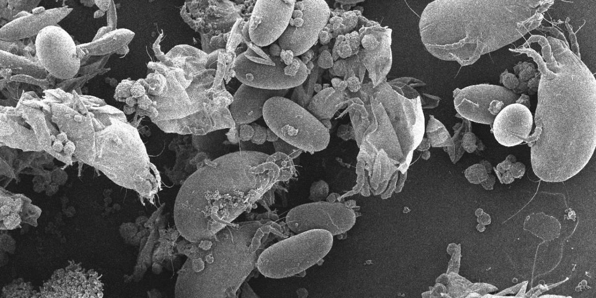 Portaltic.-Tecnología para mantener la casa libre de polvo en época de confinamiento y proliferación de ácaros