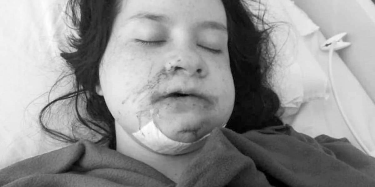 Mujer que denunció haber sido abusada y torturada por su ex clama por ayuda alimentaria