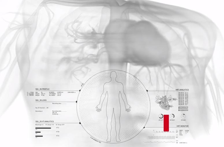 Los rayos X con la cama de Nanox.
