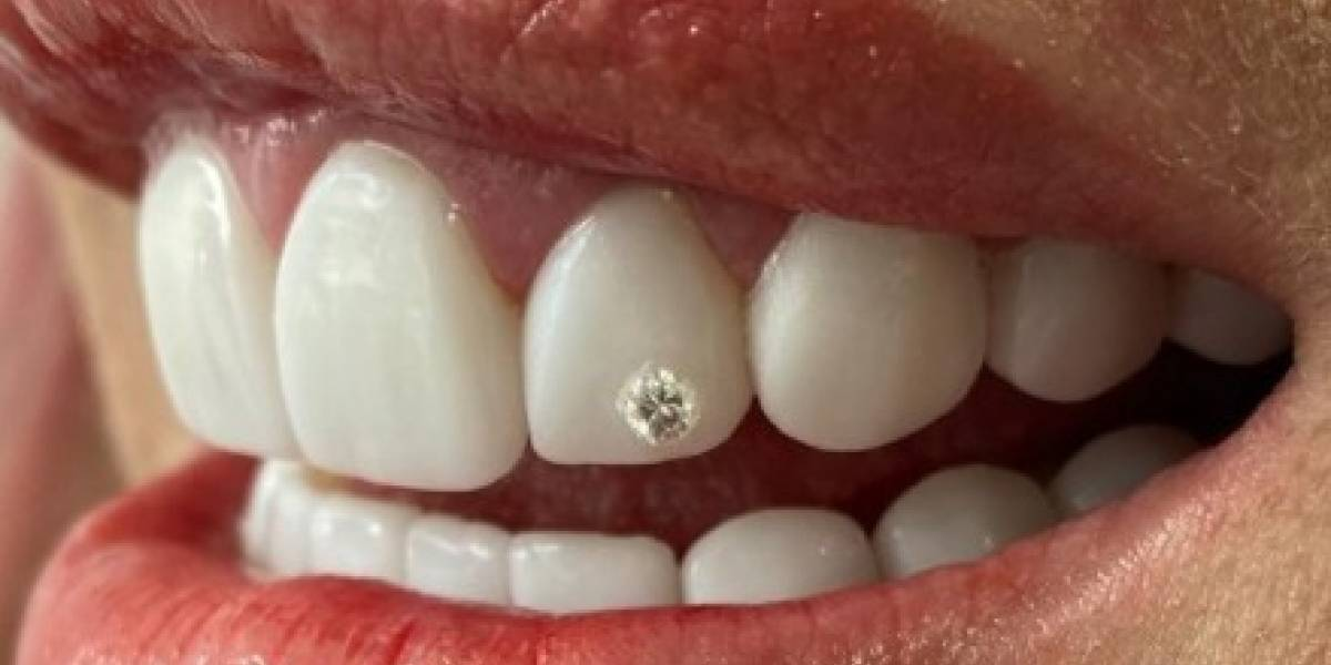 Famosa colombiana confesó que se tragó el diamante que puso en su diente