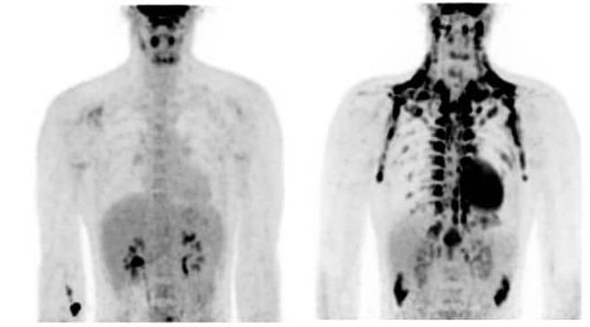 La persona de la izquierda muestra abundancia de grasa parda, en comparación la de la derecha