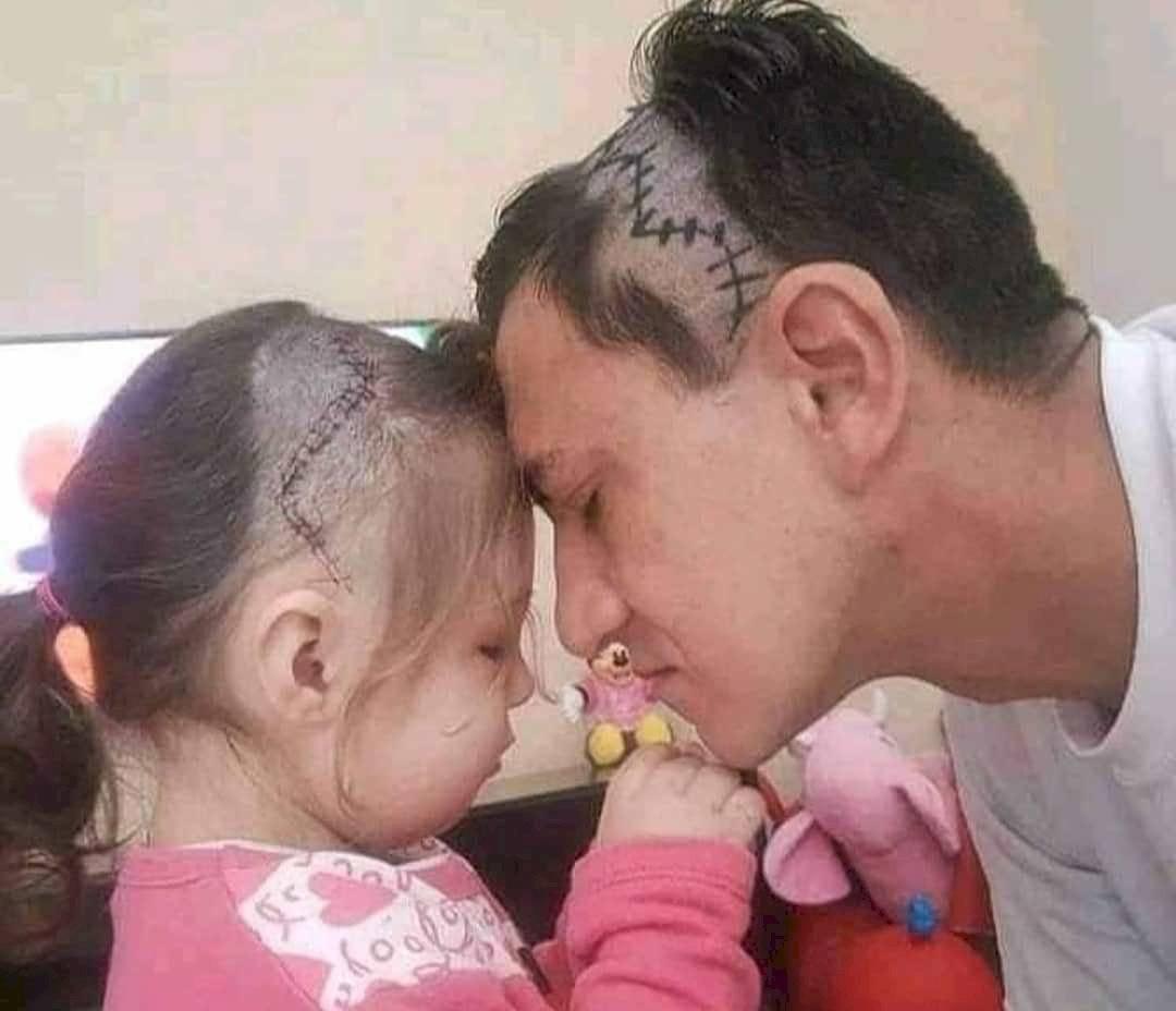Un padre se rapa la cabeza igual que su pequeña para acompañarla en un difícil momento