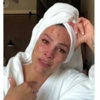 Fabiola Campomanes se quema el rostro por obsesionarse con las manchas