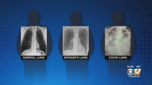 Pulmones de paciente con coronavirus