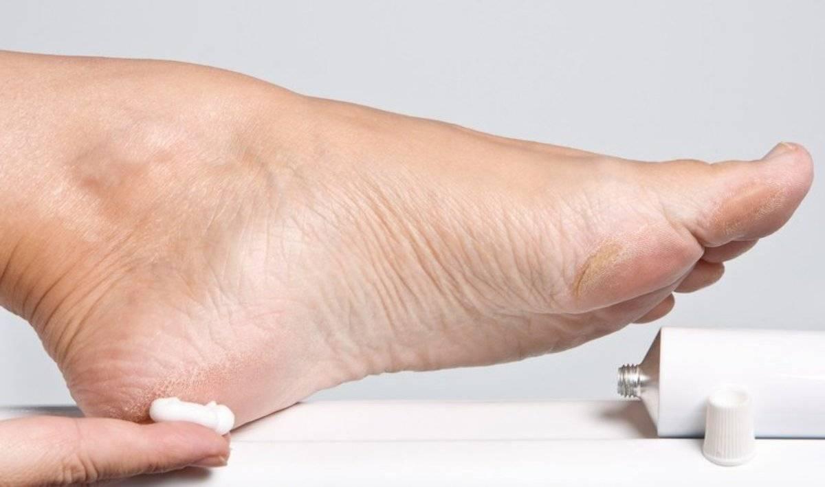 La vaselina es perfecta para proteger los pies de la rozadura con los zapatos