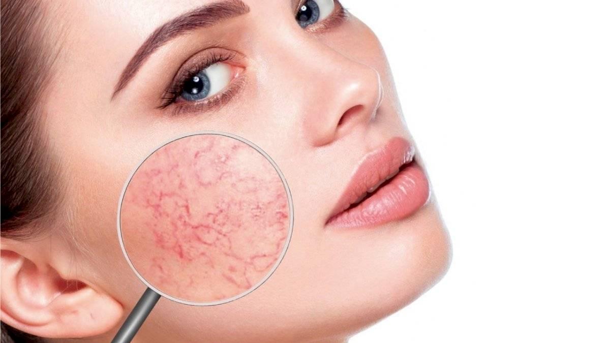 La vaselina ayuda a combatir la rosácea y la psoriasis