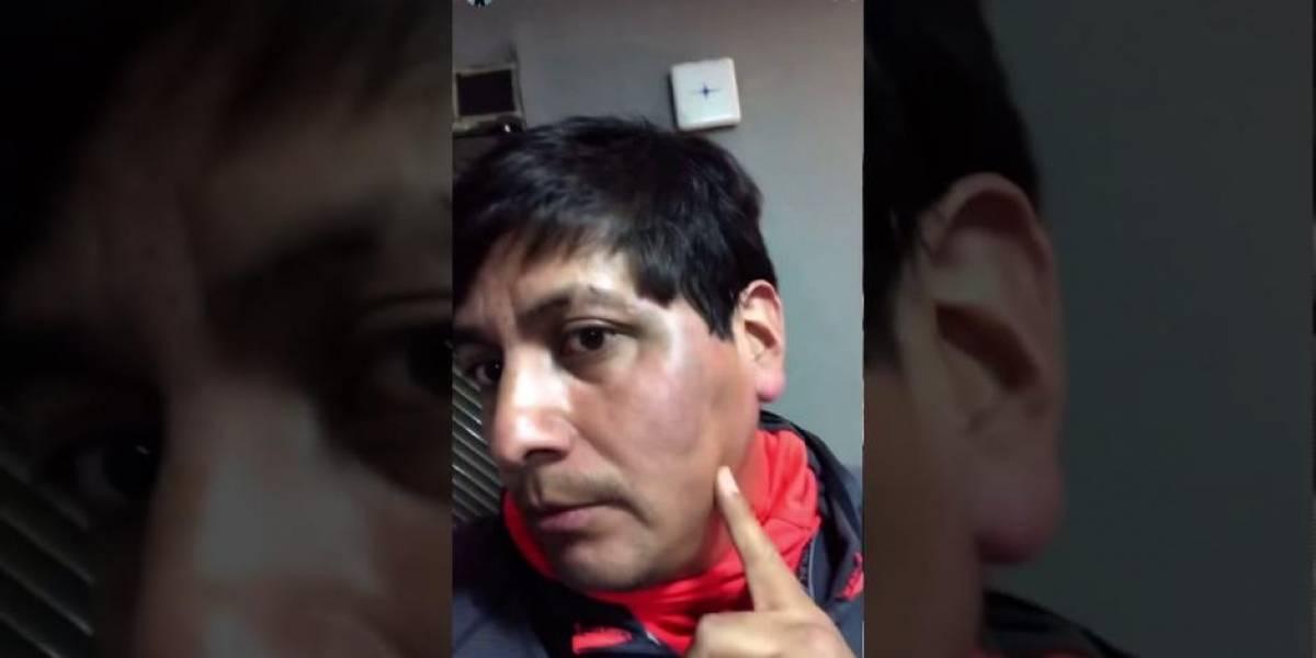"""Video: """"Acosador de TikTok"""" indigna en las redes: Juan de Dios Pantoja lo golpeó"""