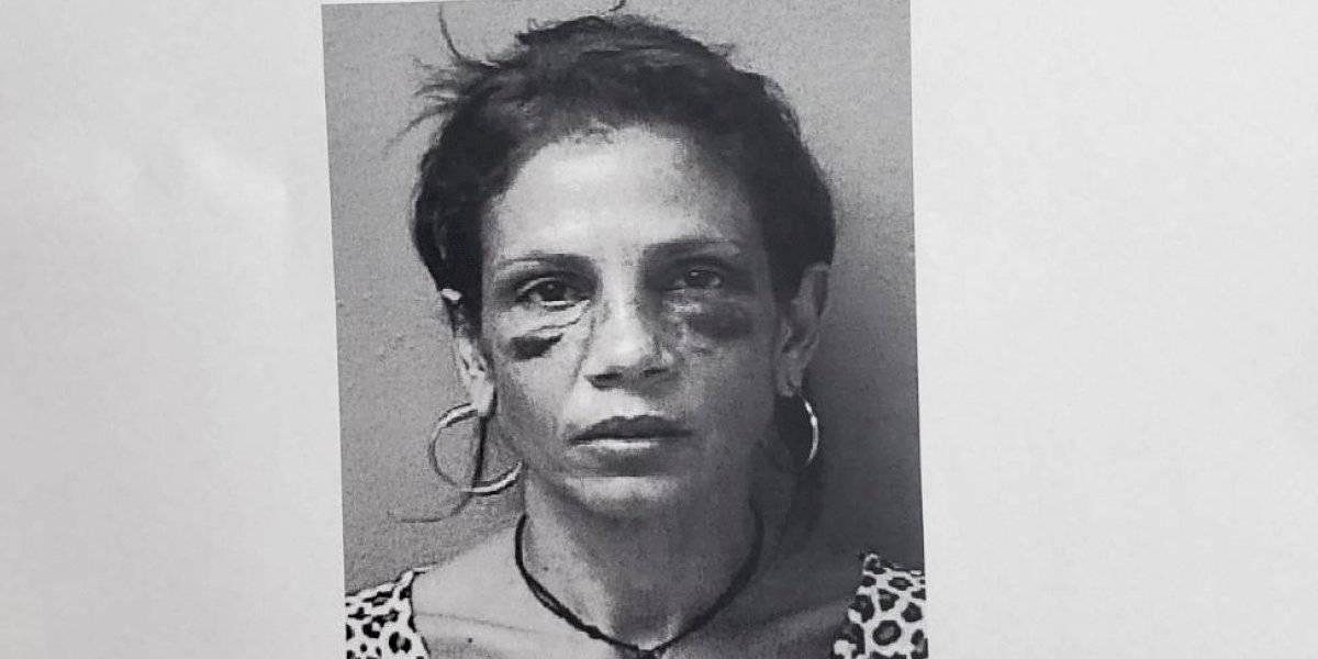 Acusan de tentativa de asesinato a mujer que arrolló con su auto a un joven
