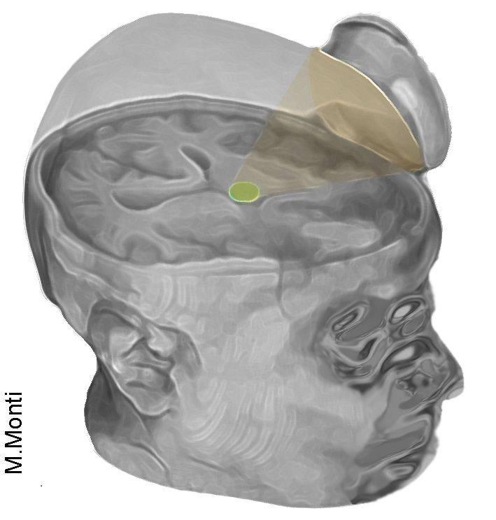 Pulsación de ultrasonido de baja intensidad.