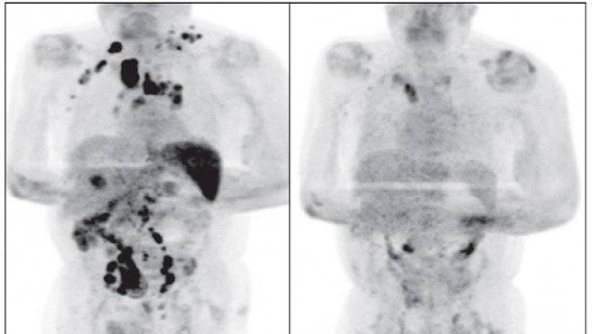 Hombre se cura de cáncer por Covid-19