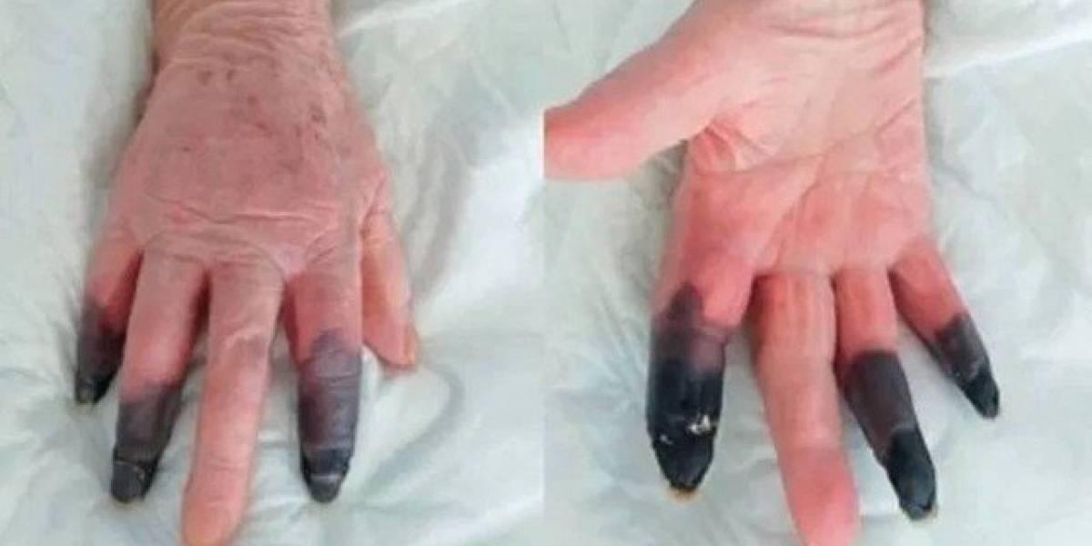 Covid-19: mulher sofre reação rara à doença e tem que amputar três dedos da mão