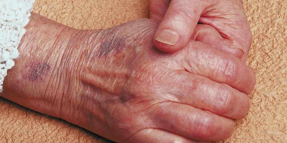 Anciana en México llega a vacunación de COVID y entrega papel denunciando maltratos de su hija