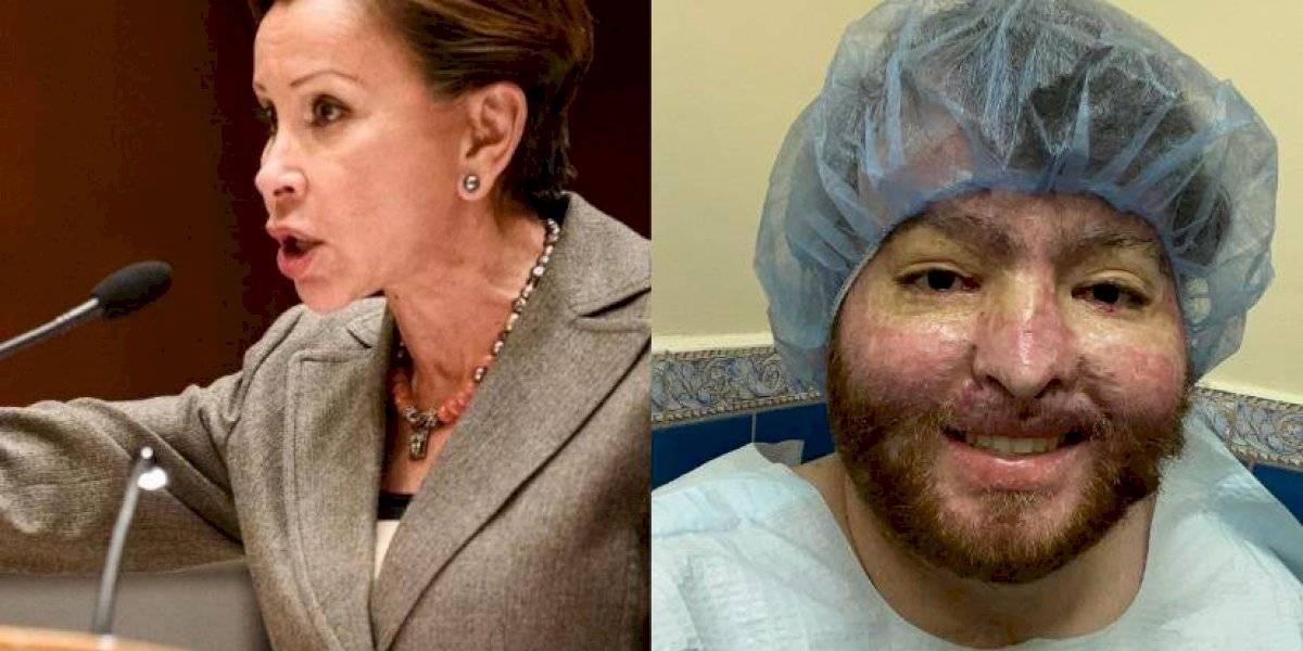Nydia Velázquez solicita al Tesoro que perdonen deuda millonaria de joven boricua quemado