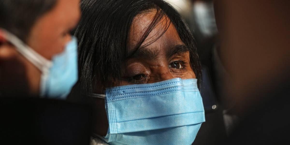 Chilena que perdió la vista en protestas exige justicia