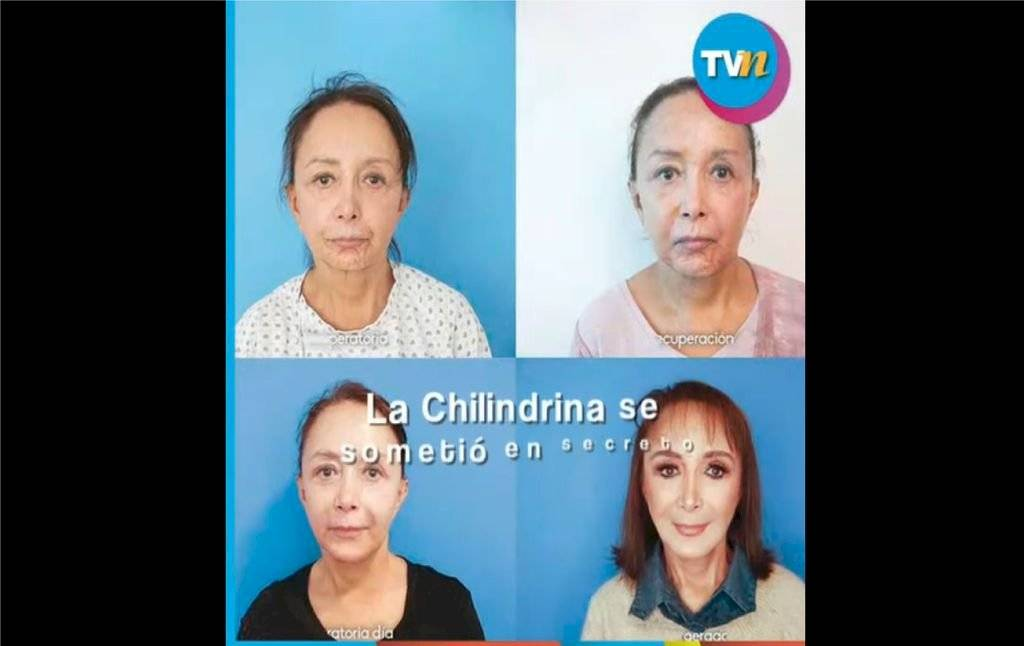 chilindrina1024x-dfeaa71864a8e990f6e5423116615759.jpg