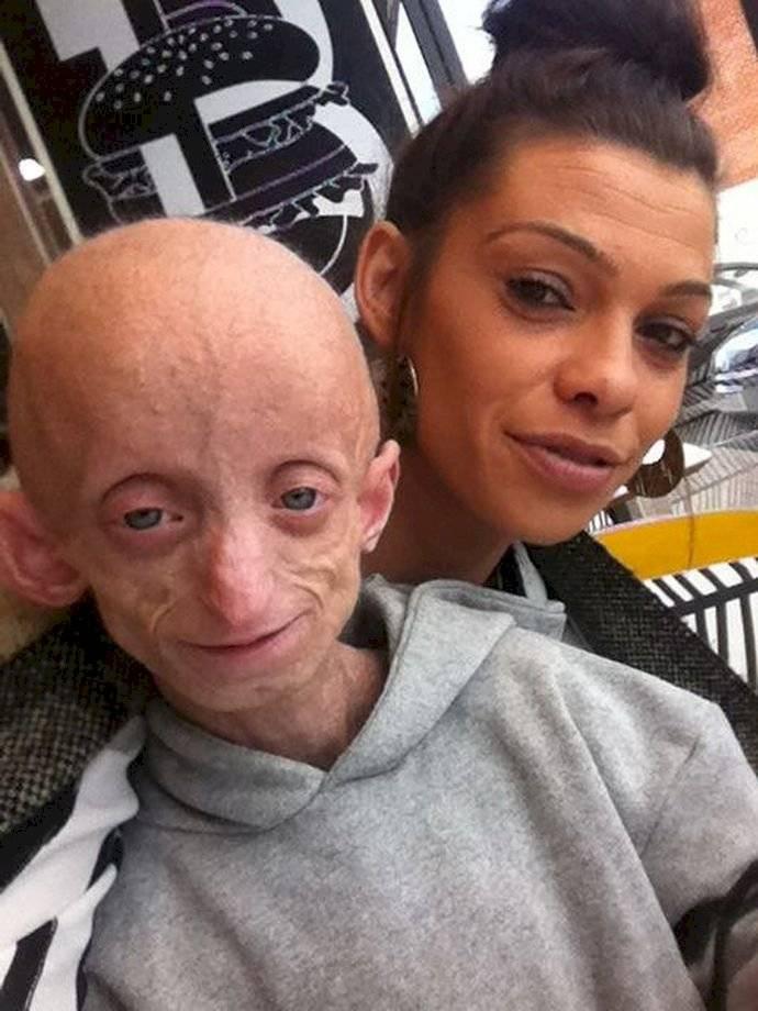 progeria-dde0f7216390bb6e8992b6f8d39ea51a.jpg