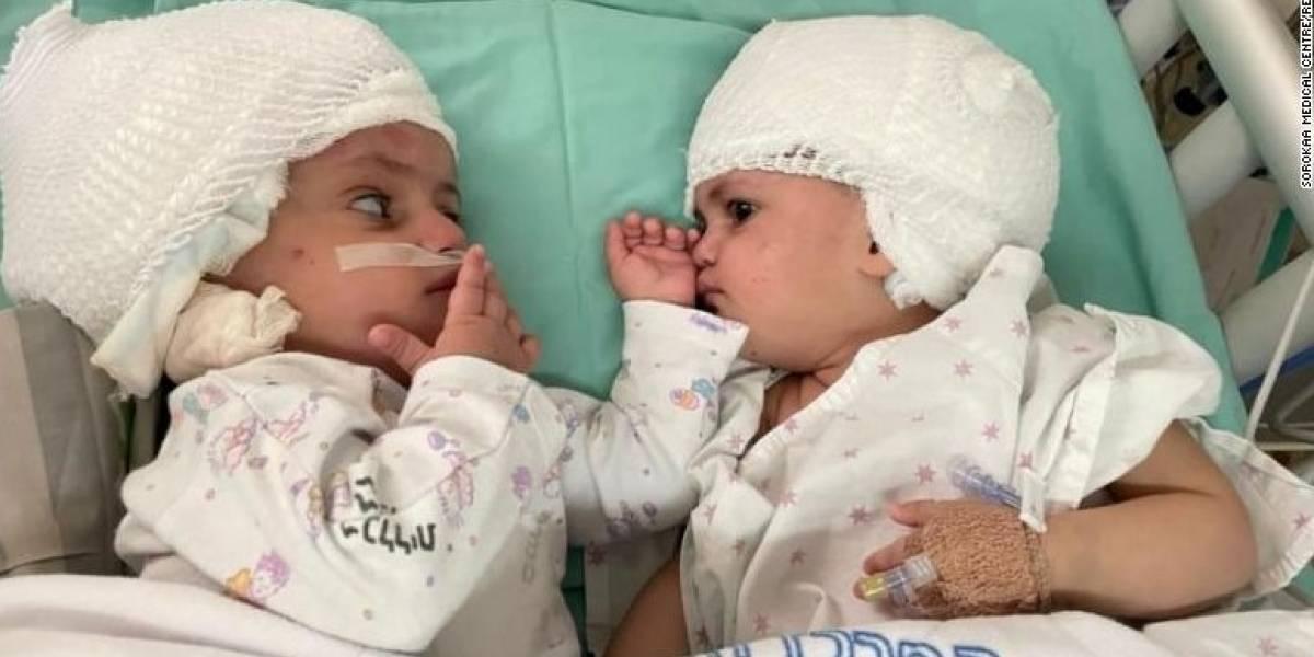 Médicos israelíes separan a gemelas que nacieron unidas por la cabeza