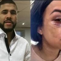 """""""La Peki"""" denuncia maltrato físico de boxeador Juanma López"""