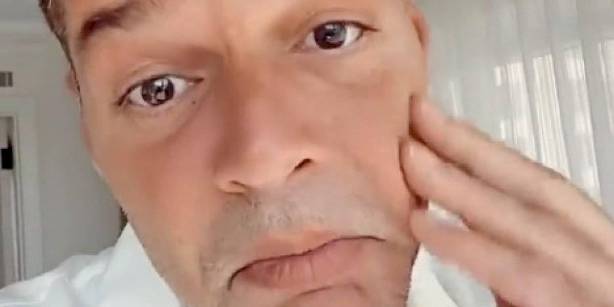 """Ricky Martin sobre rumores: """"No me he hecho nada en la cara"""""""