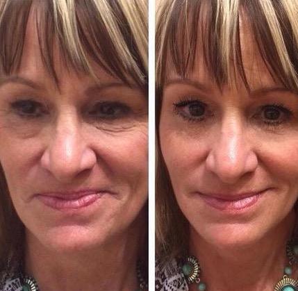 Rellena Las Arrugas En Segundos Conoce La Milagrosa Crema Que Es